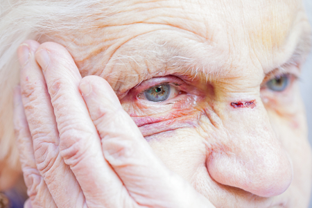 80863985 - close up picture of an injured elderly woman's eyes & face